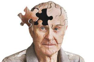 ۶ توصیه برای مقابله با خطر ابتلا به آلزایمر