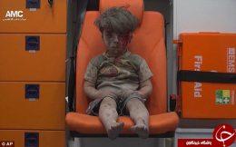 کودک 5 ساله زخمی