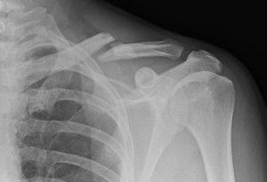 شکستگی استخوان را در خانه درمان کنید + دستورالعمل